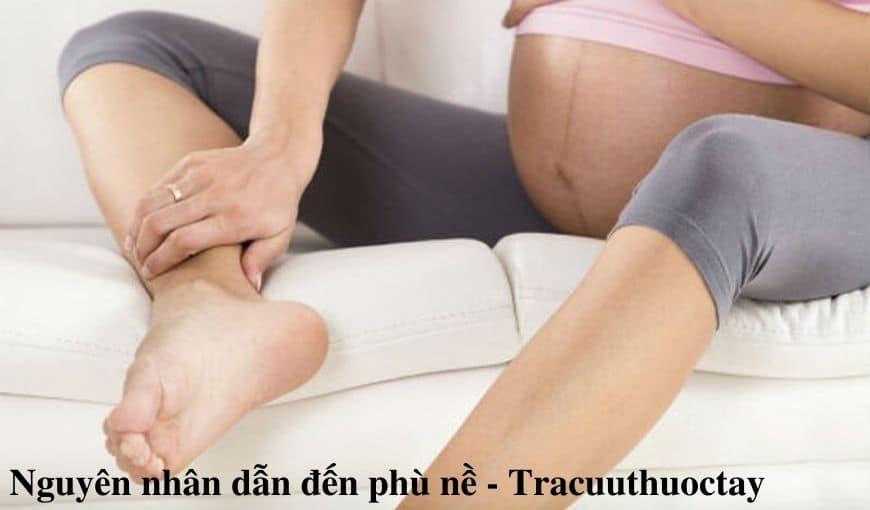 Phu-ne-la-gi-Nguyen-nhan-dau-hieu-cach-dieu-tri