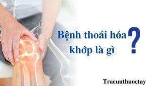 Benh-thoai-hoa-khop-Dau-hieu-nguyen-nhan-cach-dieu-tri